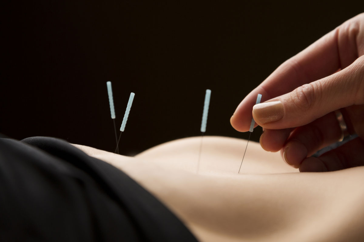 acupuncture-treatments-tcm-acupuncture-miami-benefits