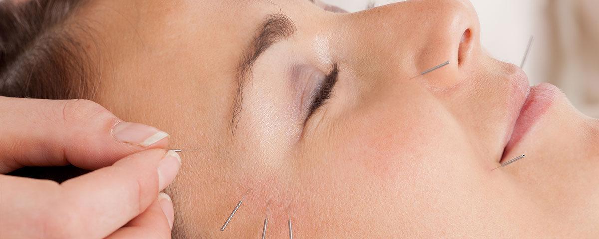 acupuncture-cupping-tcm-acupuncture-miami-acupuncture-infertility-miami-acupuncture-treatments